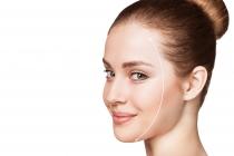 Remodelage de l'ovale du visage avec des fils tenseurs