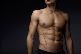 La cryolipolyse est-elle efficace chez les hommes ?